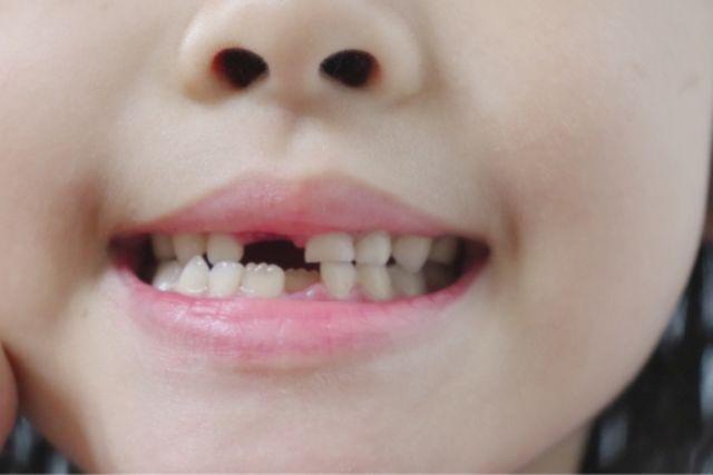 乳歯 歯並び 悪い